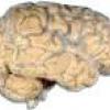Арахноідальная кіста як наслідок струсу головного мозку