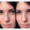 Як коригувати вади шкіри на фотографії