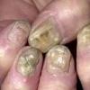 Як лікувати грибок нігтів народними засобами?