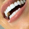 Як відбілити зуби за 3 дні