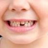 Як доглядати за молочними зубами?
