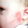 Кальцій в раціоні дитини з алергією на молочні продукти