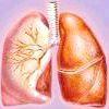 Лікування кашлю при бронхіті
