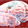 Лікування набряку головного мозку