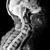 Мієлопатія: симптоми та лікування