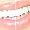 Відбілити зуби в домашніх умовах
