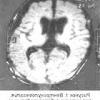 Септохіазмальная дисплазія